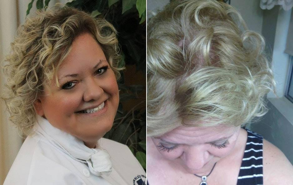 Before and After Varese Blonde Hair